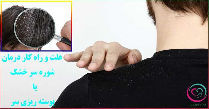 شوره سر خشک یا پوسته ریزی کف سر - علت و راه کارهای درمانی