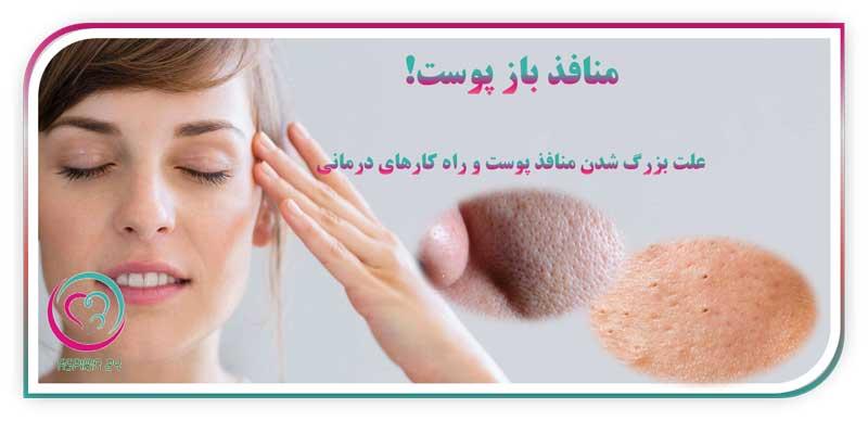 منافذ باز پوست - علت بزرگ شدن منافذ پوست و راه کارهای درمانی !