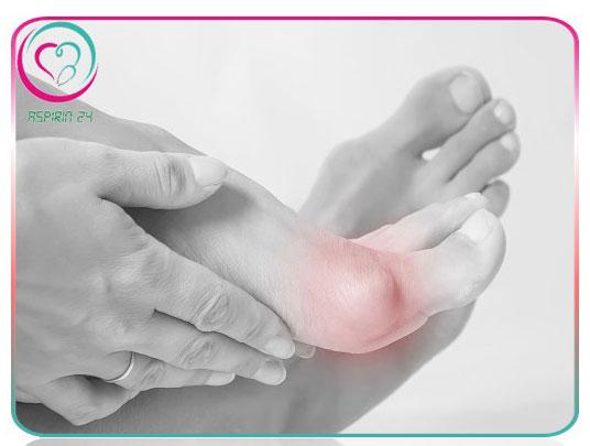 علل و درمان انحراف شست پا